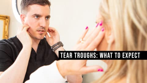 Tear Troughs: What to Expect